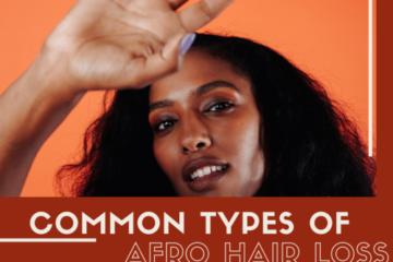 AFRO+HAIR+LOSS
